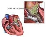 medium_endocarditis.jpg
